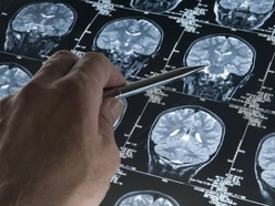 Pleas for funding boost as dementia care costs threaten to soar