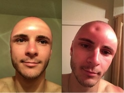 Ouch! This guy's sunburn resulted in some serious swelling