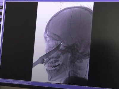 Boy survives having his face impaled by 10in knife