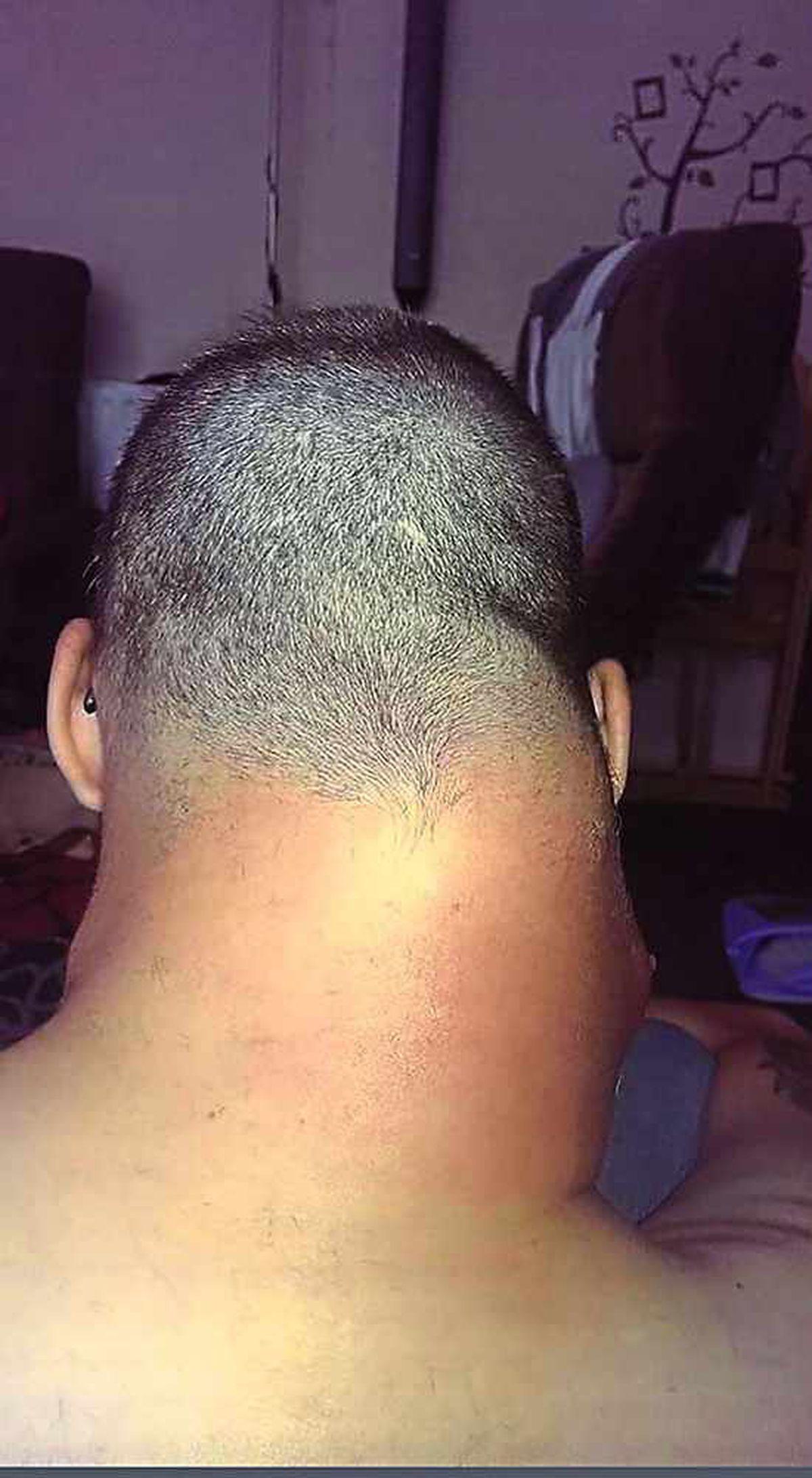 The lump on Simon's neck