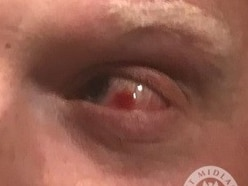 Officer 'nearly blinded' as coin hurled at eye outside Villa Park