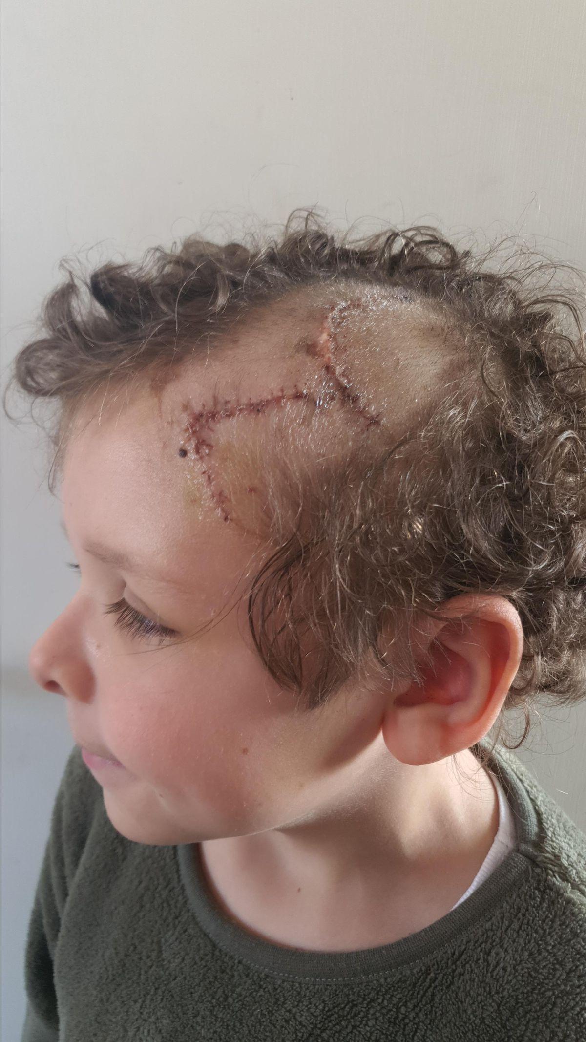 Noah's stitches on his head