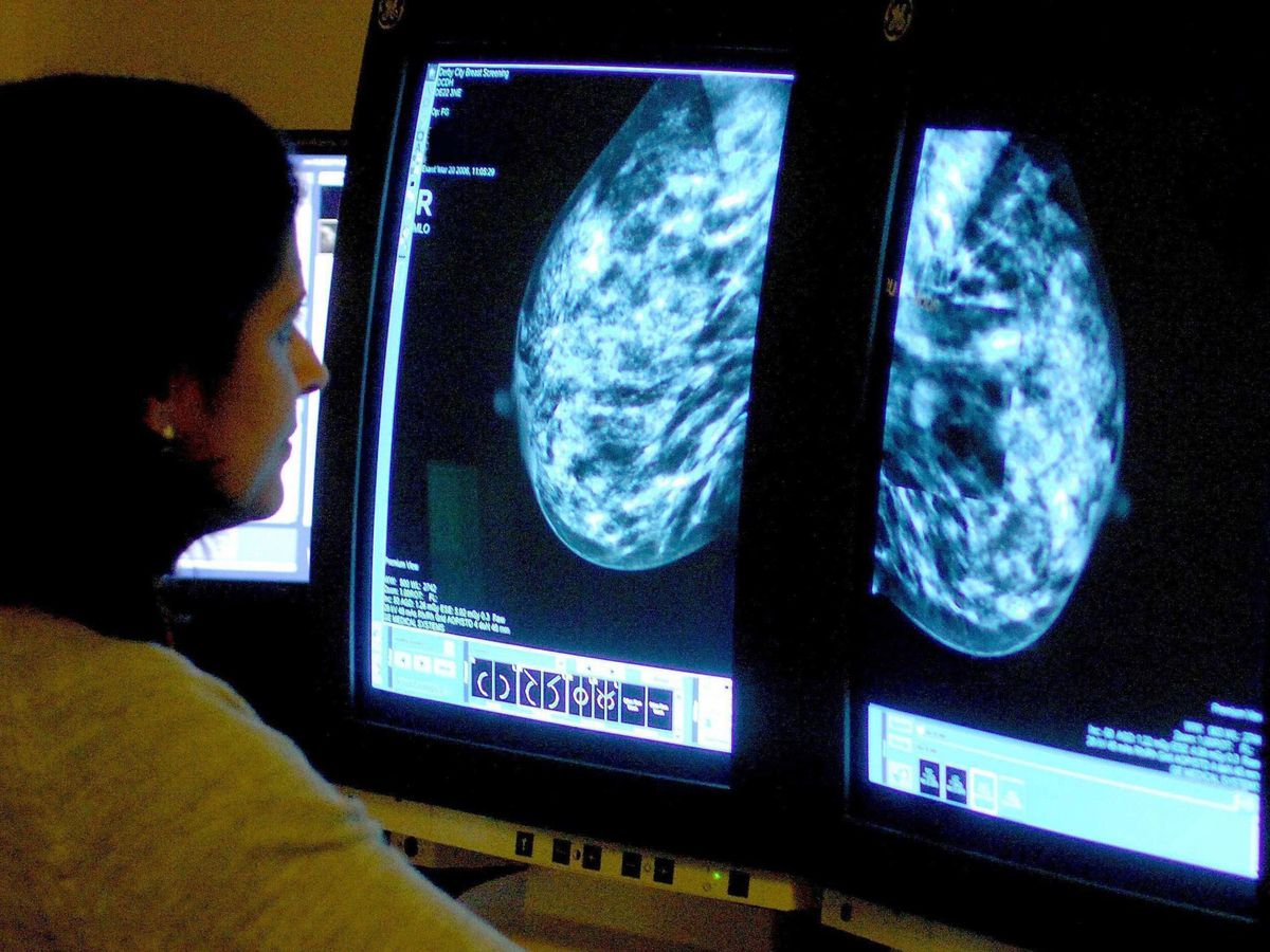 Bowl and Breast cancer study