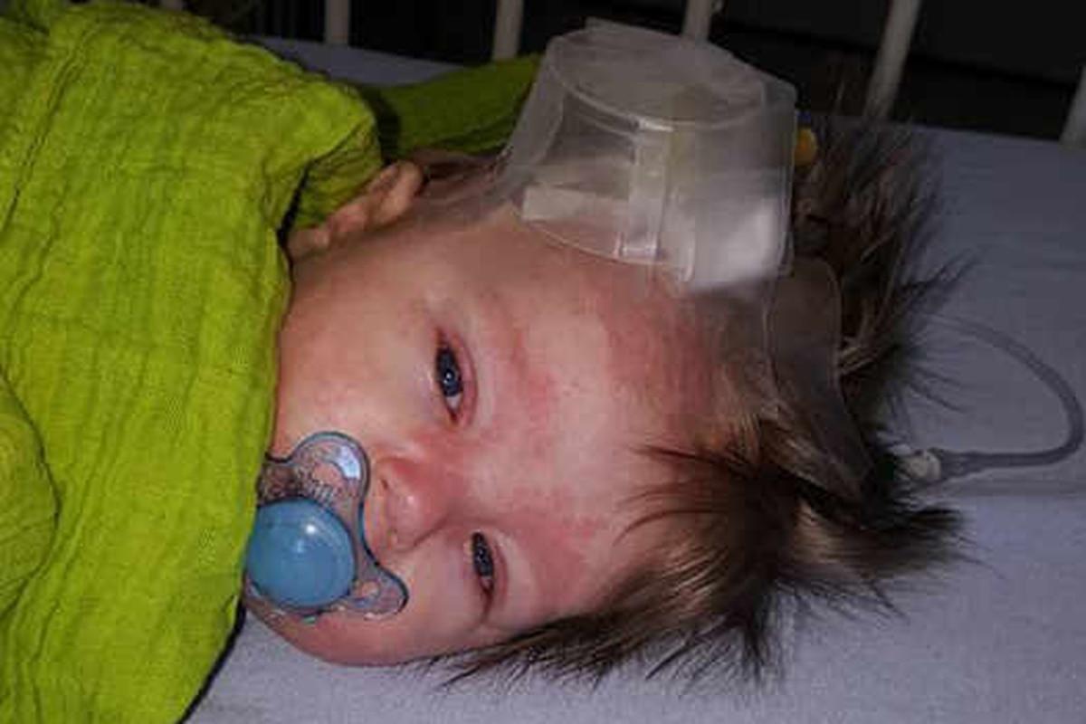 Mother's meningitis warning after baby's spots turn into ...