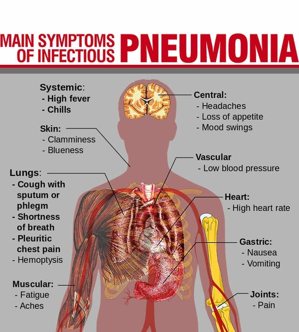 Pneumonia: The disease that kills 80 every day