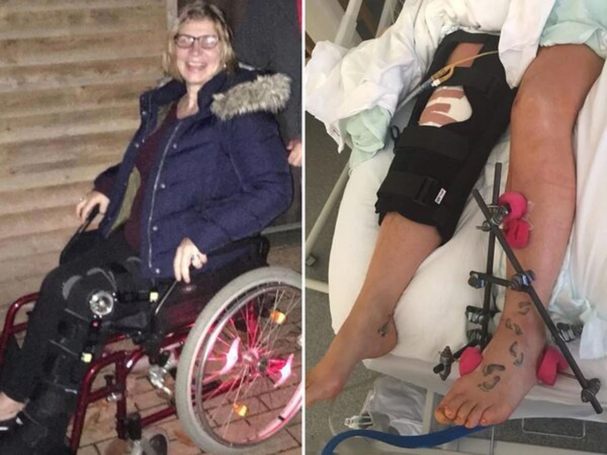 Pc Claire Bond in a wheelchair, left, and in hospital, right