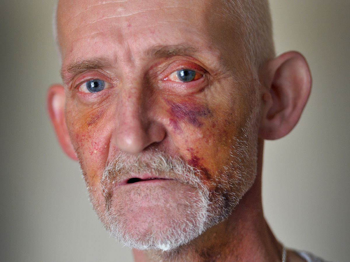 Paul Cashmore might need surgery on his face after he was attacked by a stranger in Wolverhampton while offering help