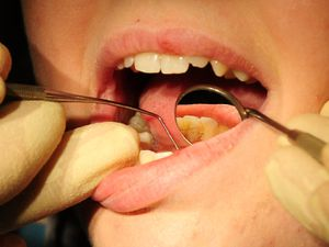 """Embargoed to 0001 Friday April 1  File photo dated 19/05/11 of a dentist at work as patients seeking help for tooth problem on the NHS are being """"failed"""", leading dentists have said. PRESS ASSOCIATION Photo. Issue date: Friday April 1, 2016. The British Dental Association (BDA) said dentists are bound by trying to achieve """"senseless targets"""" which means they are forced to provide more curative treatments than preventive care. See PA story HEALTH Dentists. Photo credit should read: Rui Vieira/PA Wire"""