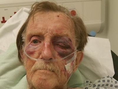 Thugs break in and beat up man, 87, in his home