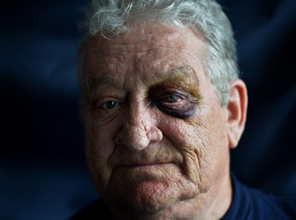 Howard Warner has been left badly bruised.