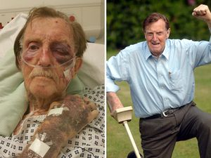 Arthur Gumbley, pictured fit and healthy after finding his 'treasure' and right, after the attack