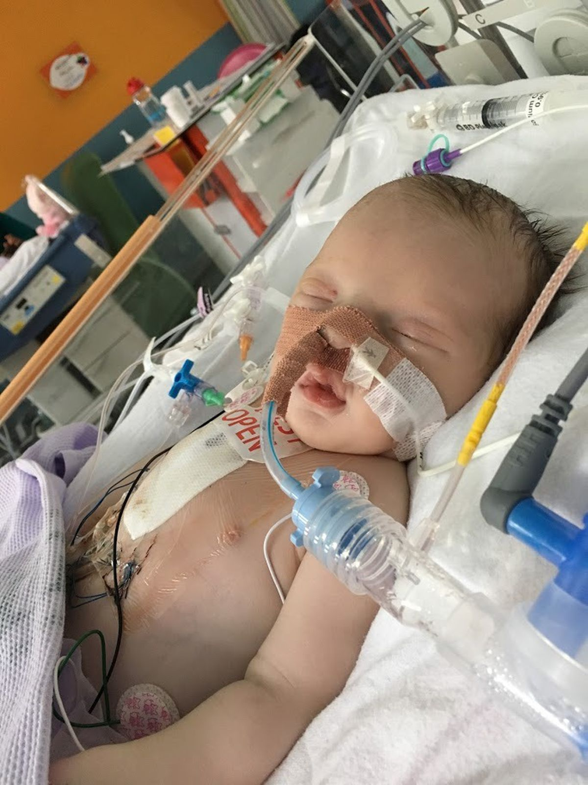 Mabel received open-heart surgery at just six days old