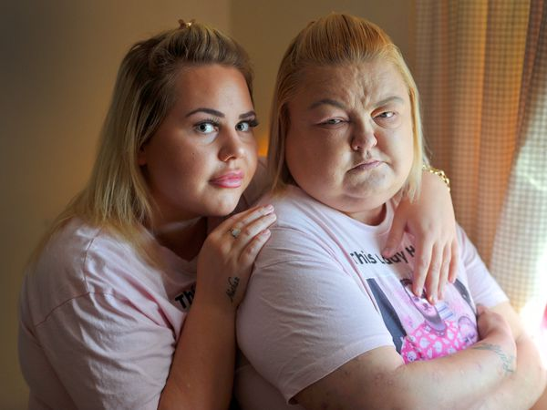 Susan Buckler, 40, pictured with her niece Samantha Holmes