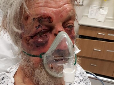 Hunt for driver after pensioner left seriously injured in 'nonsensical attack'