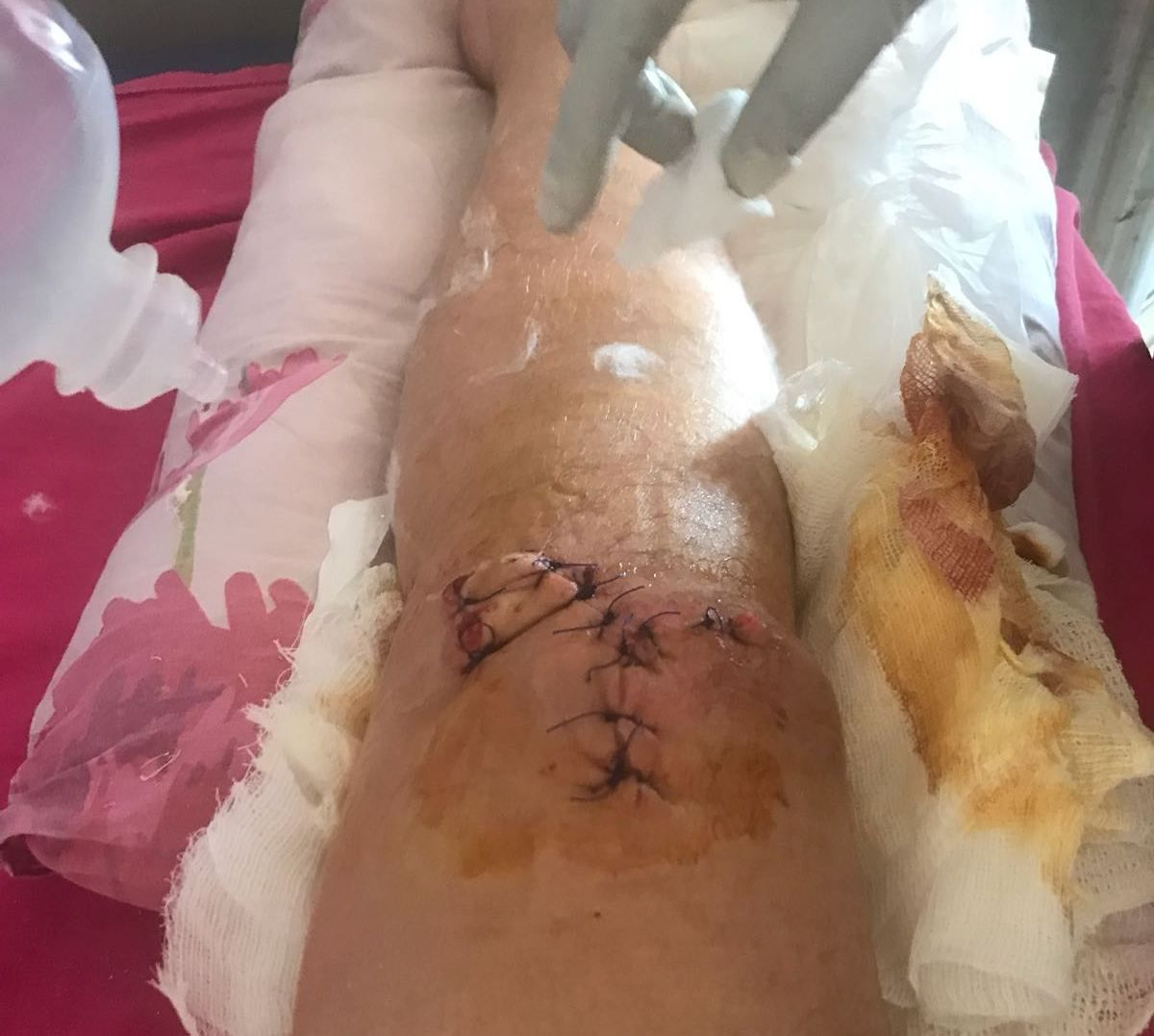 His injured knee after the accident