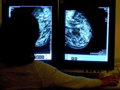 Cut costs and save lives by testing all women for faulty cancer genes – study