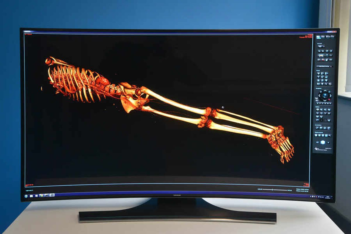 A 3D scan of a body using the technology at the £1.2m autopsy centre