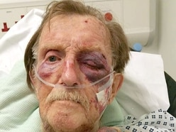 Arthur Gumbley: Murder trial told how brutal beating led to 87-year-old's death