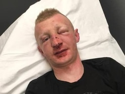 Plea to find thugs who coaxed autistic man out of his home before launching a 'disgusting' assault