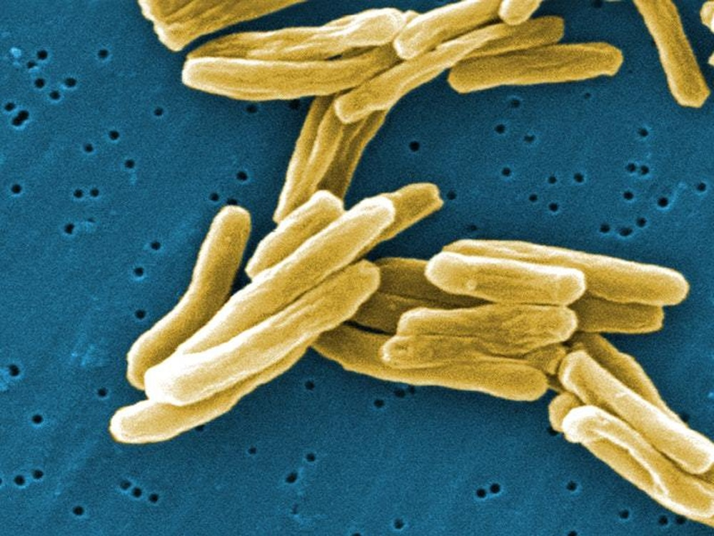 Many Antibiotics Are Natural Products Of Microbes