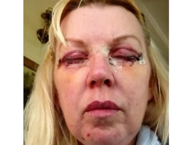 Woman's relief after surgeon struck off following botched cosmetic procedure