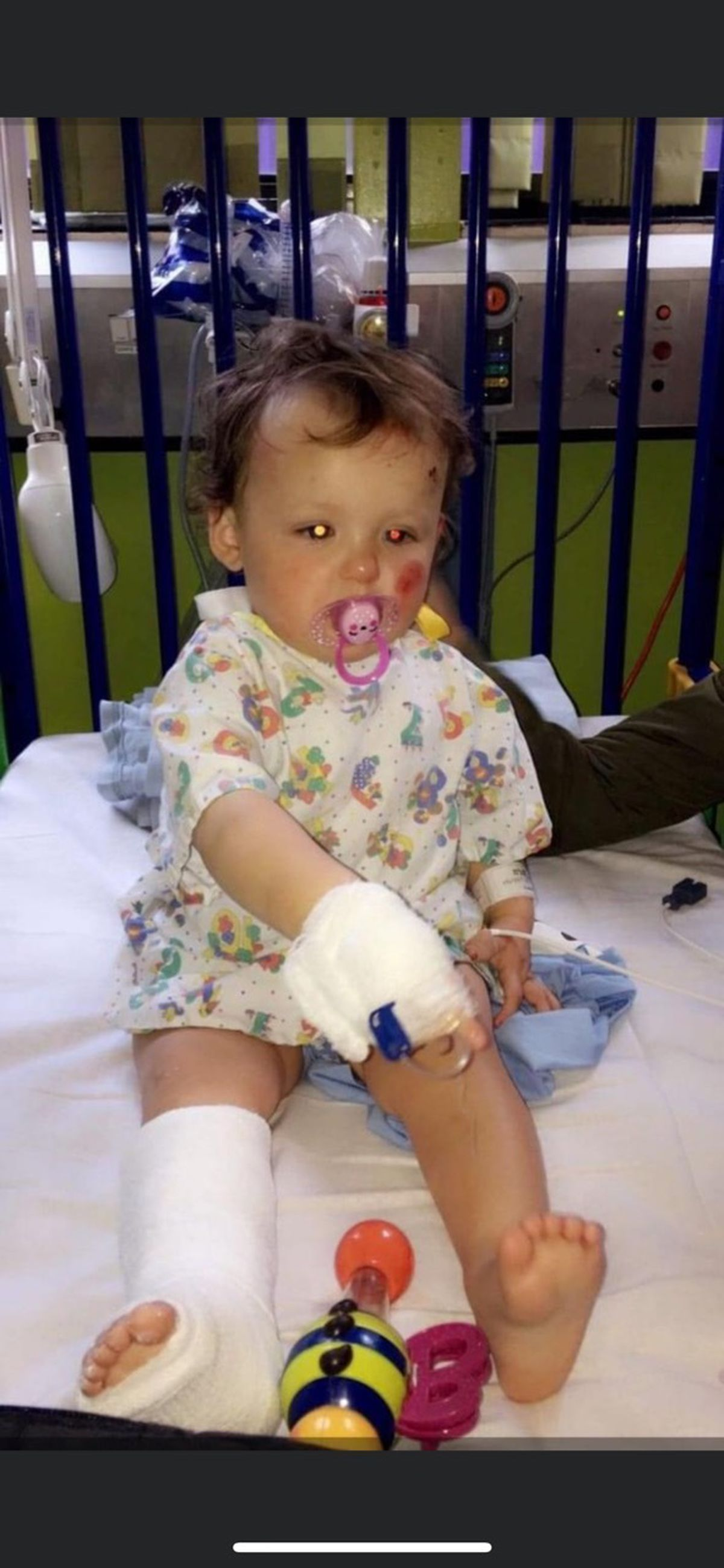 Harper Whittle was less than two years old when she suffered fractures and bruising in the incident