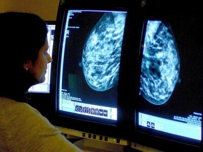 Report finds 'misunderstanding' over breast cancer screening error