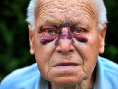 'I thought he was going to kill me': Walsall pensioner beaten up while gardening