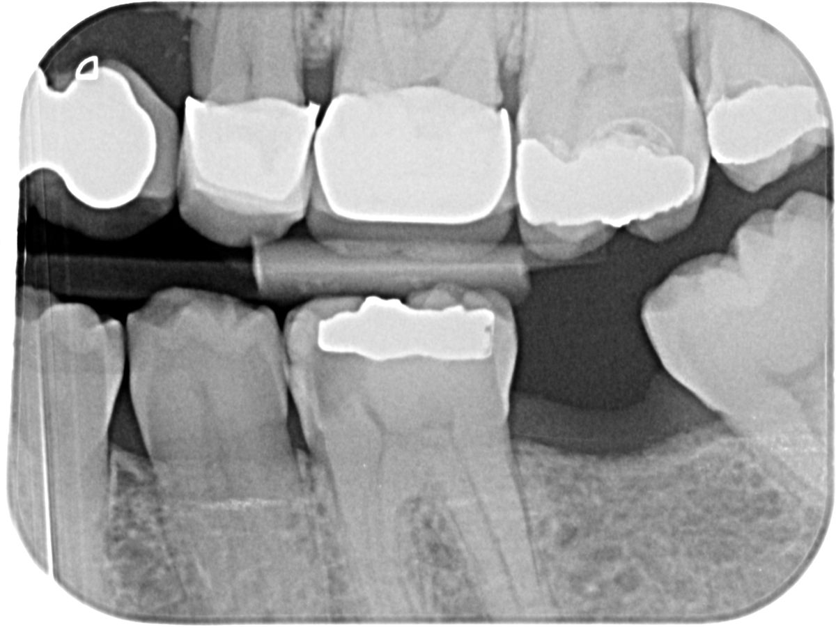 An x-ray showing Mrs Douglas's lower molars in 2014