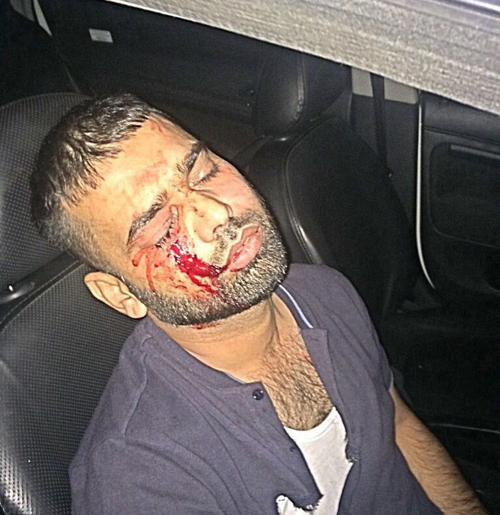 Dudley taxi driver left with serious injuries after attack ...
