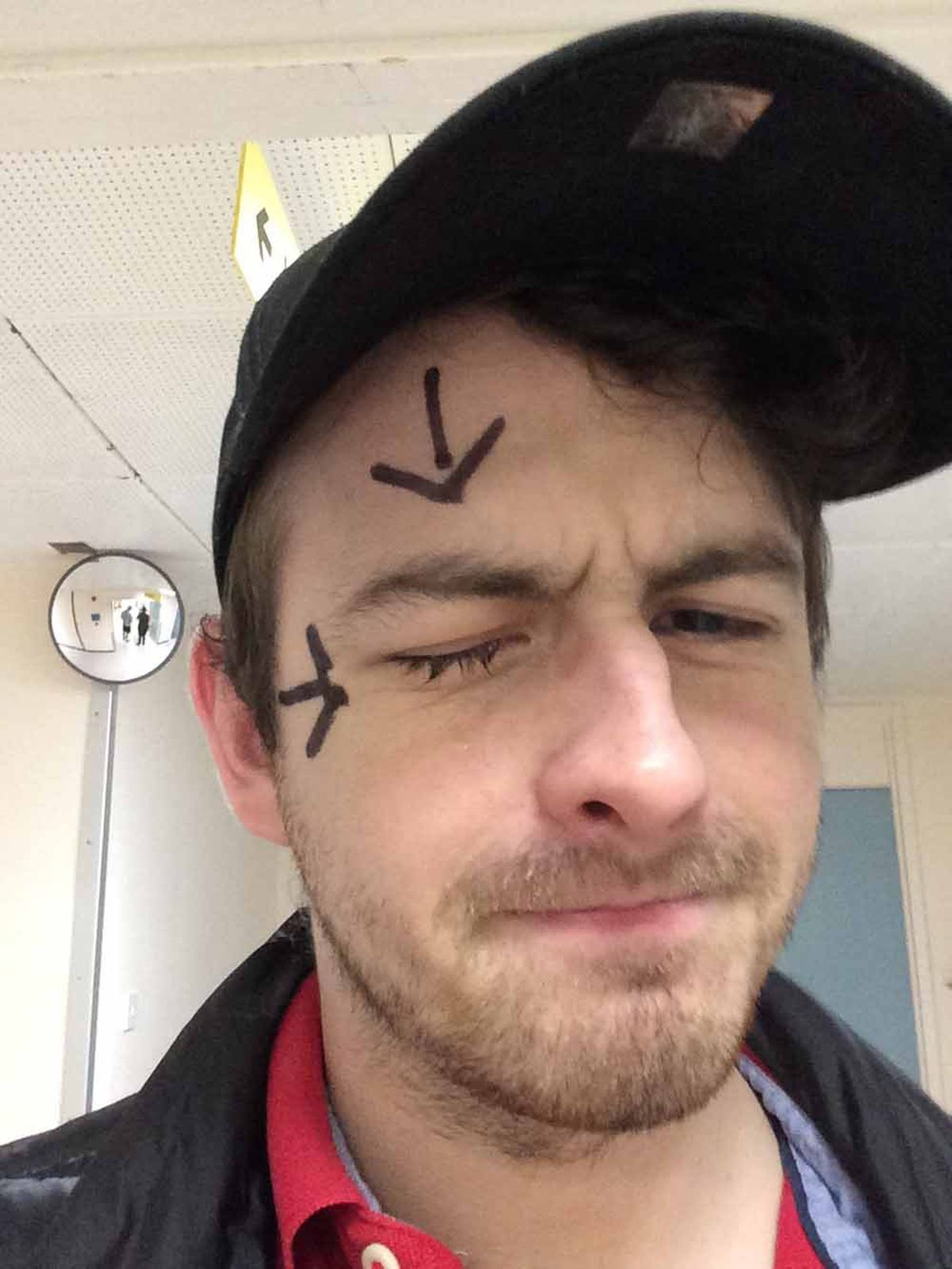 Arrows painted on before surgery, just in case the surgeon forgot which eye