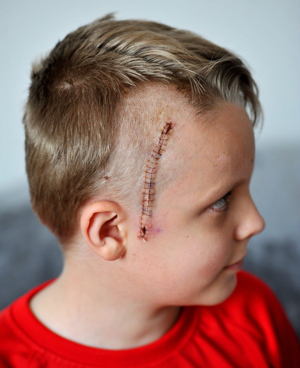 Archie had to have surgery and 23 stitches on his head